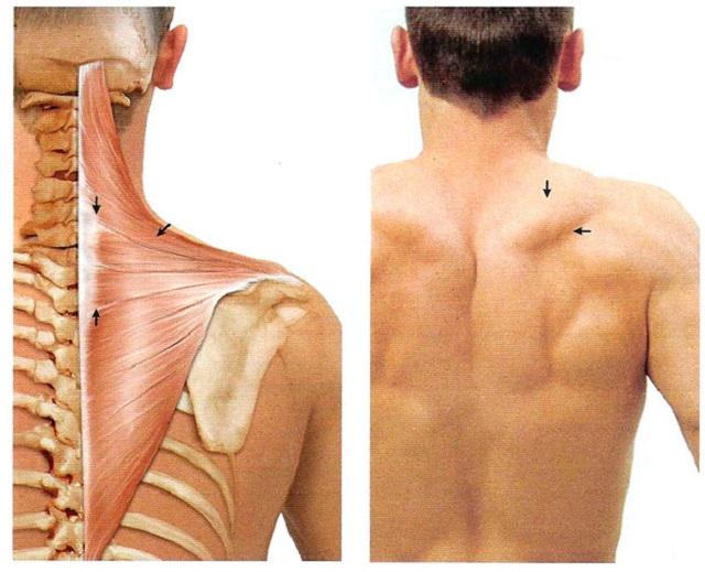 Опухла мышца спины рядом с позвоночником