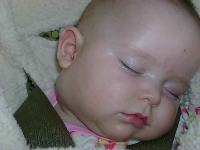 лимфоузлы на шее фото у ребенка