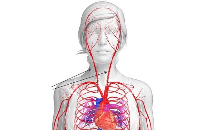 Сонная Артерия: Болезни, Симптомы, Облитерирующие Заболевания