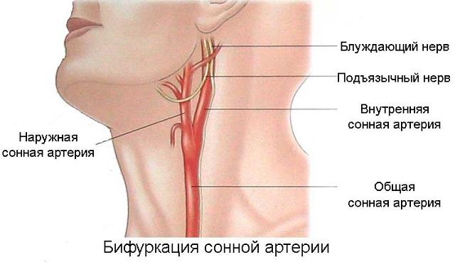 Что делать если защемлены артерии на шее