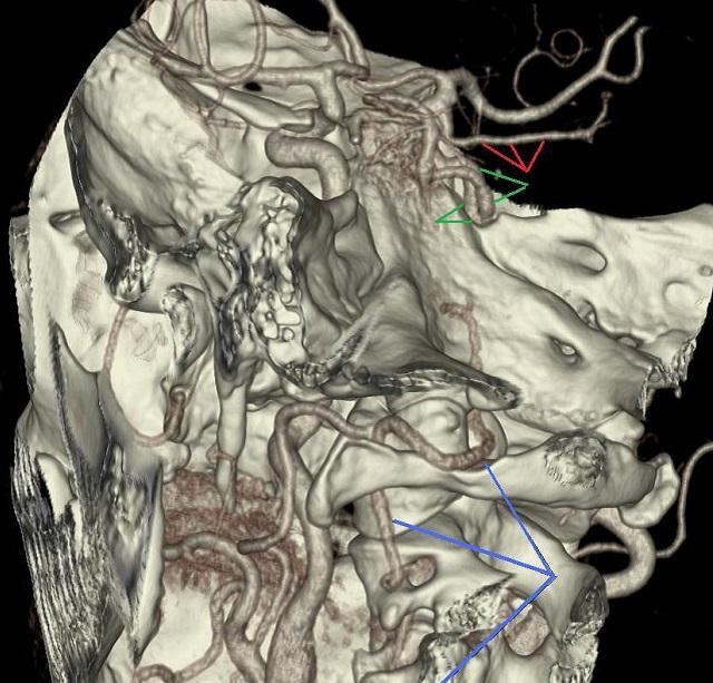 Неполная задняя трифуркация правой внутренней сонной артерии