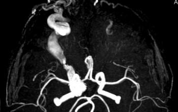 Cercul de Willis exemplu de realizare a unei lipse sau reducerea fluxului sanguin, tratament