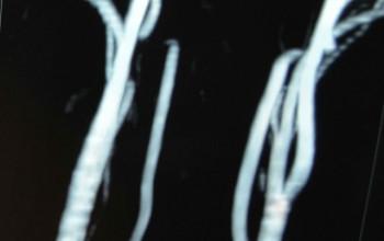 Непрямолинейность артерий